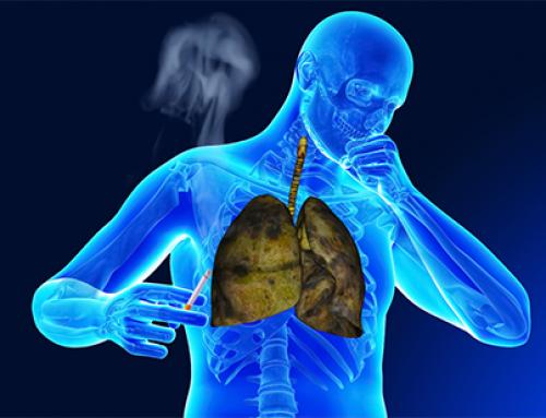 Coronavirus:nei fumatori il rischio di finire in terapia intensiva è più del doppio